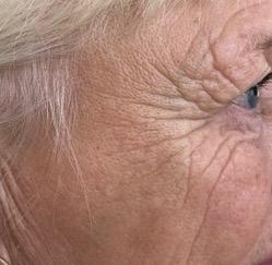 Før ansigtsbehandling med akupunktur